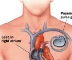 Ilustración de las derivaciones de un marcapasos artificial al corazón