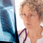 Female medical specialist looking at lung X-ray
