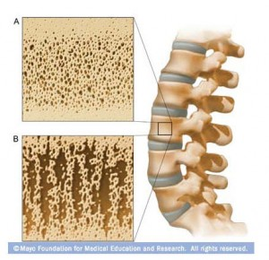 Mayo image of spine and bone density description