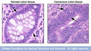 Microscopic image of colon tissue and colon cancer