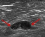 Ultrasound of Suspicious Node in Obese Patient