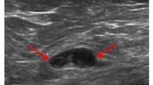 Ecografía de un nódulo sospechoso en una paciente obesa