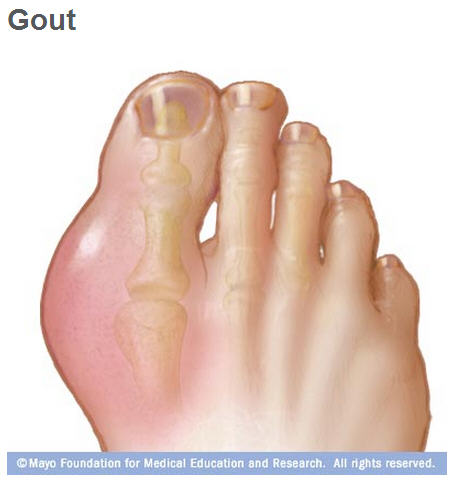 Illustration of foot with gout