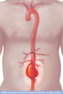 Graphic of abdominal aortic aneurysm