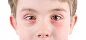 un niño con conjuntivitis