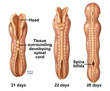 Ilustración del desarrollo del conducto neural y de la espina bífida