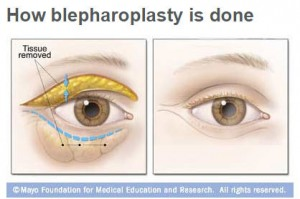 medical illustration of how blepharoplasty is done on the eyes