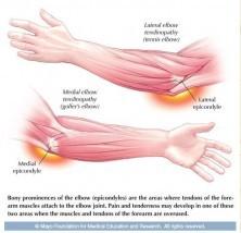 Ilustración de dolor en el codo