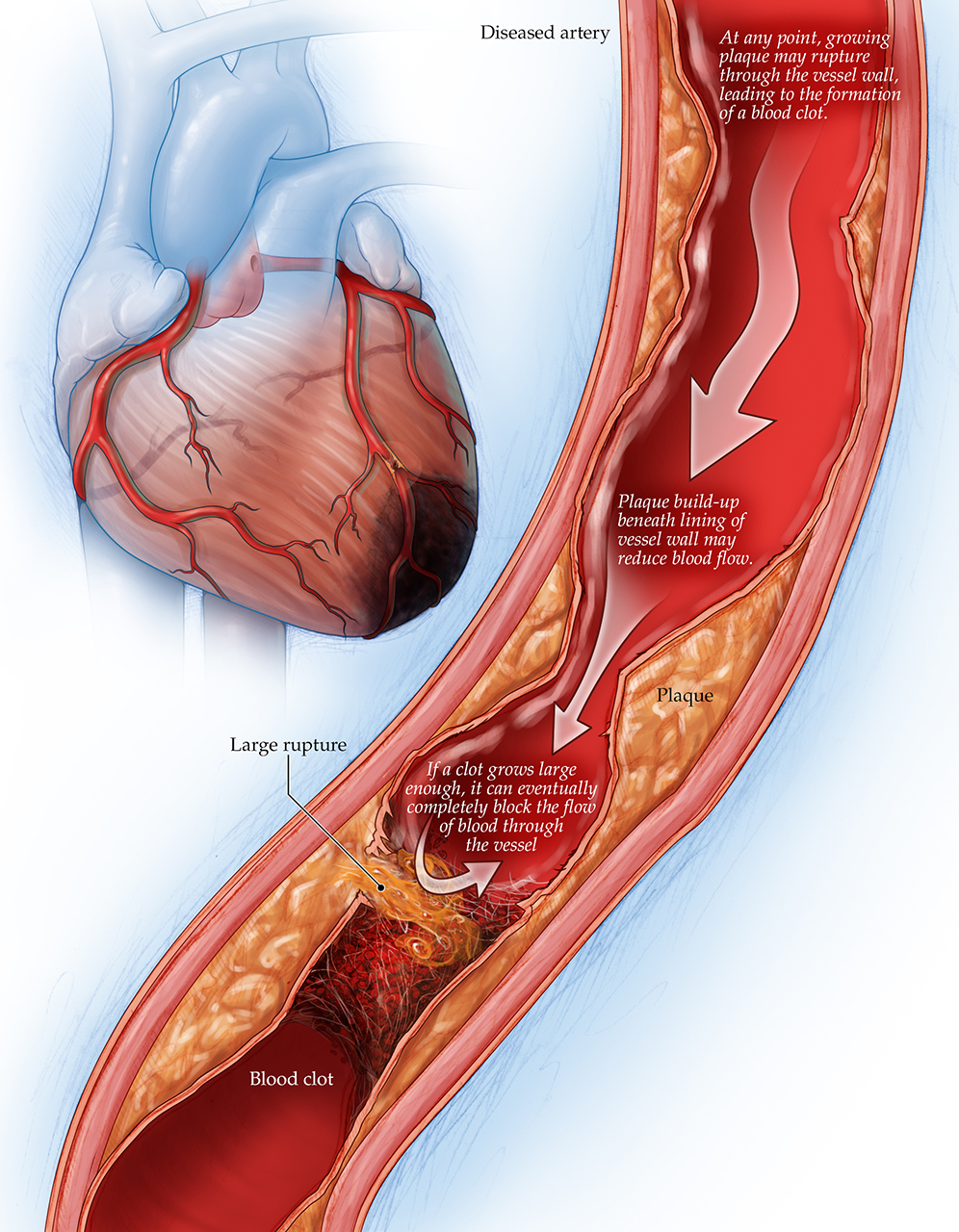 coronary artery disease illustration