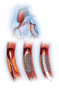 coronary artery illustration with mesh
