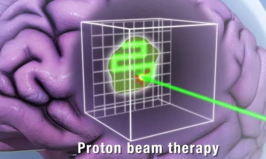 close up animation of pencil thin proton beam on tumor