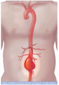 Ilustración de aneurismas aórticos abdominales