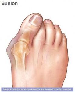Ilustración de un pie con juanete