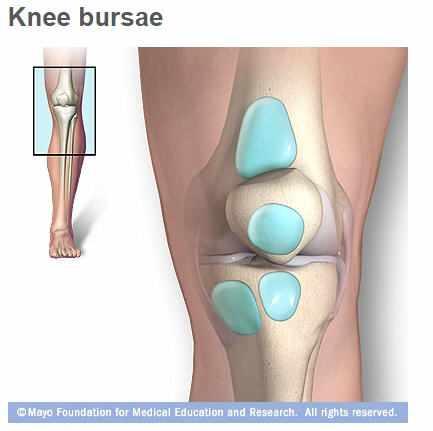 bursitis de pierna cie 10