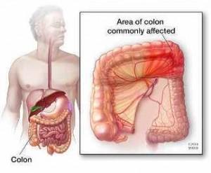 Ilustración de un abdomen, donde se resalta el colon (izquierda) y la colitis isquémica (derecha)