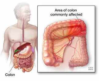 Dolor al lado derecho del abdomen debajo de las costillas