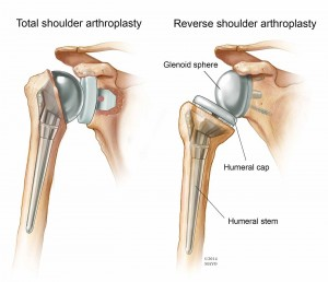 illustration of shoulder arthroplasty