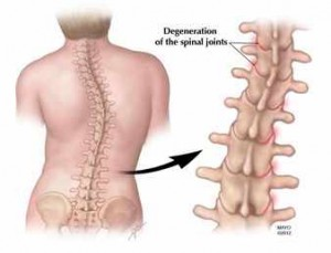 Imagen de la degeneración de las articulaciones de la columna vertebral
