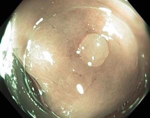 O pólipo hiperplásico benigno aparece de forma pálida na imagem.