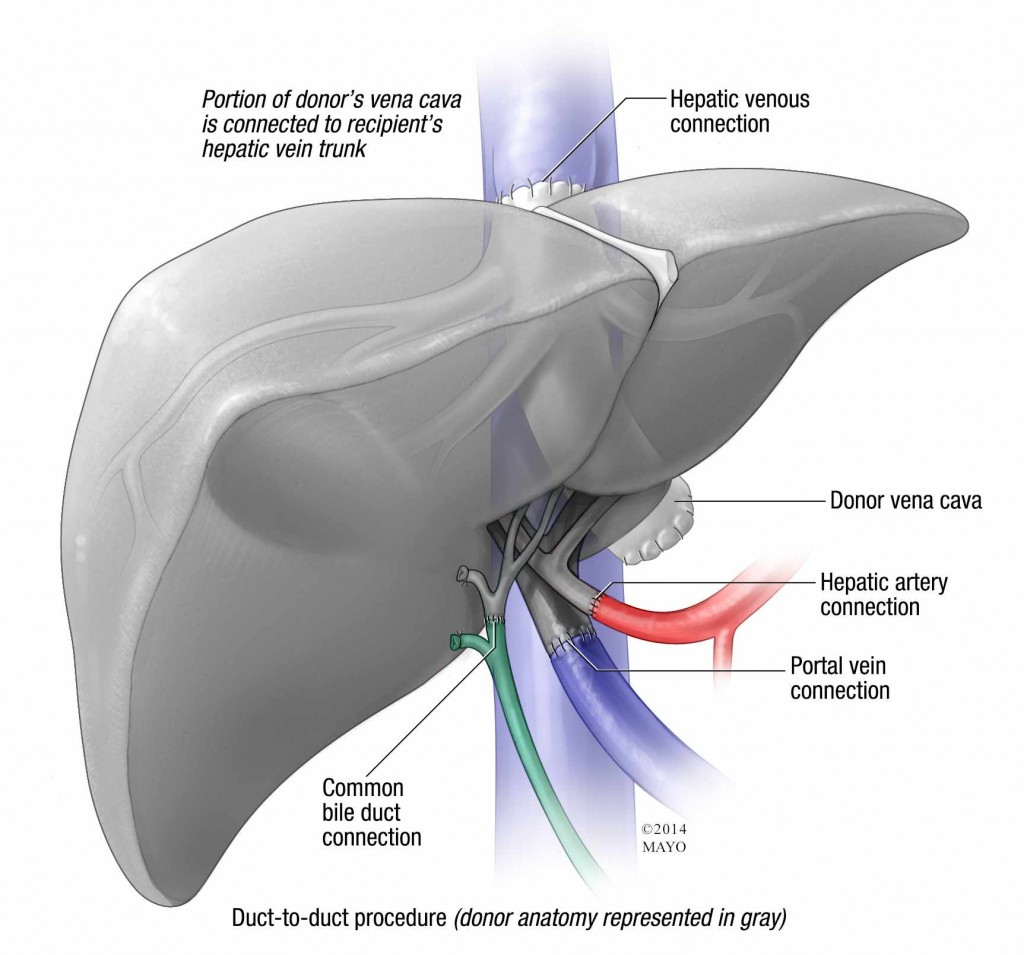 illustration of liver transplant duct-to-duct procedure
