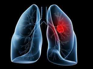 Ilustración de los pulmones con un tumor canceroso