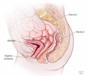 illustration of vaginal prolapse