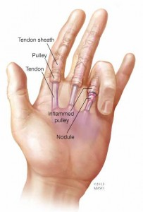 illustration of hand with trigger finger