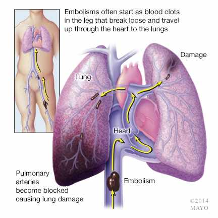 DVT pulmonary embolism illustration