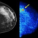 MBI - mammogram Xray
