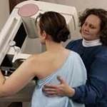 una mujer se realiza una mamografía