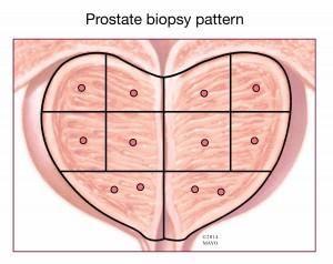prostate biopsy pattern illustration