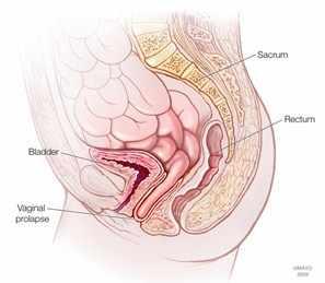 Ilustración del prolapso vaginal