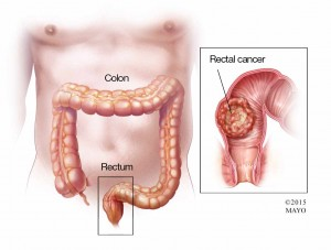 illustration of rectal cancer