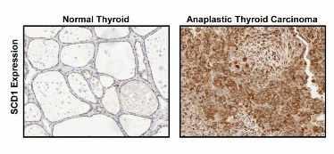 Láminas que muestran la proteína SCD1 en tejido tiroideo normal y en tejido de carcinoma anaplásico de tiroides.