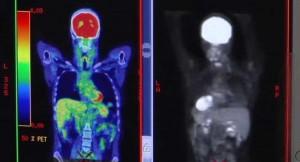 cancer imaging for HBO measles virus documentary