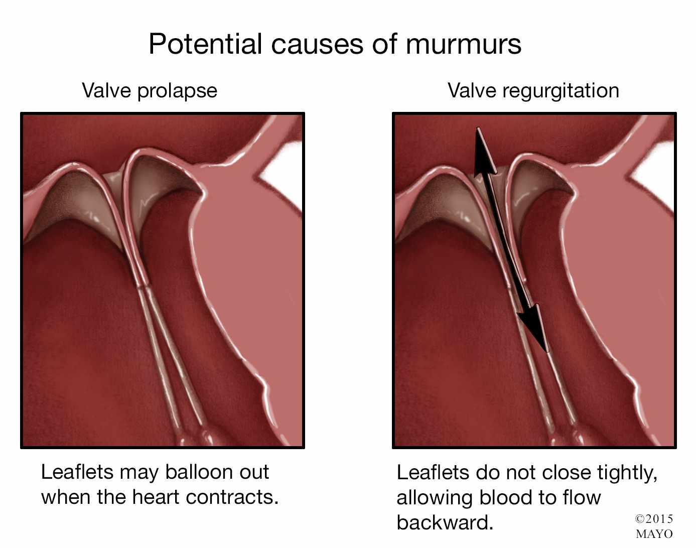 A Heart Murmur Can Be Innocent Or Serious Mayo Clinic News Network