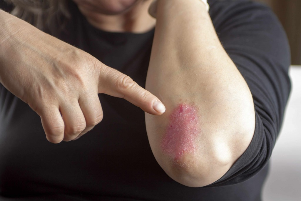closeup of itchy dry skin, psoriasis on elbow