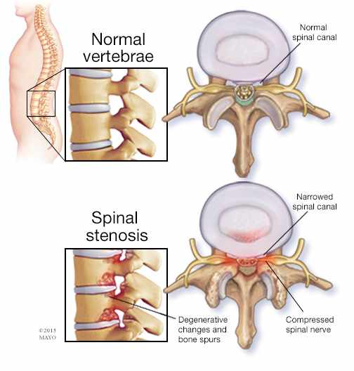 illustration of normal vertebrae and spinal stenosis