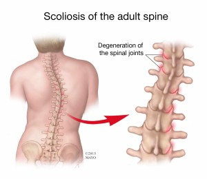 scoliosis of the adult spine - illustration