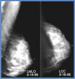 Imagen de tejido mamario denso con cáncer