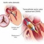 Ilustración de la estenosis de la válvula aórtica (reemplazo de la válvula aórtica con metodología transcatéter)