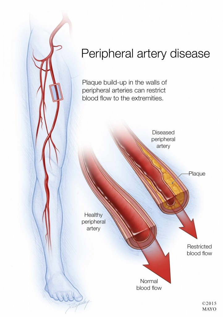illustration of peripheral artery disease