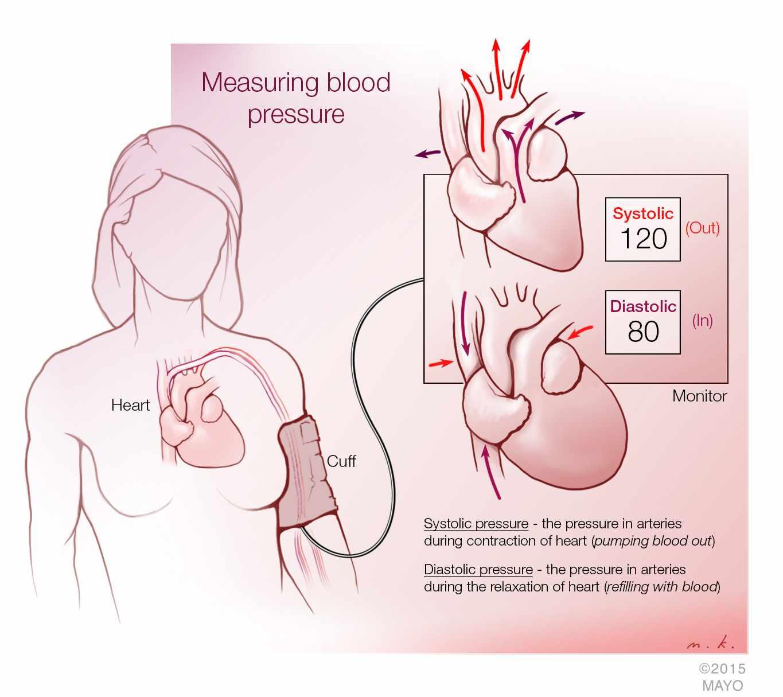 Prolonged Shortened Sleep Increases Blood Pressure at Night – Mayo ...