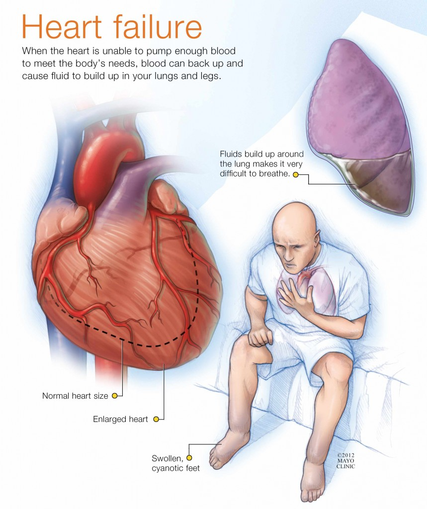 illustration of man having heart failure