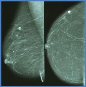 Imagen de tejido mamario no denso con cáncer