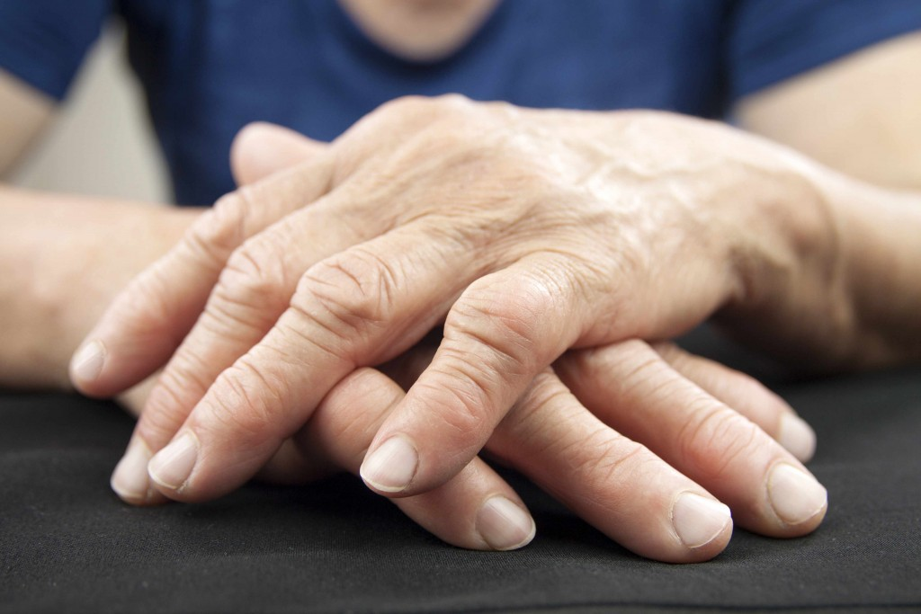 closeup photo of hands of older person, loosely folded on table