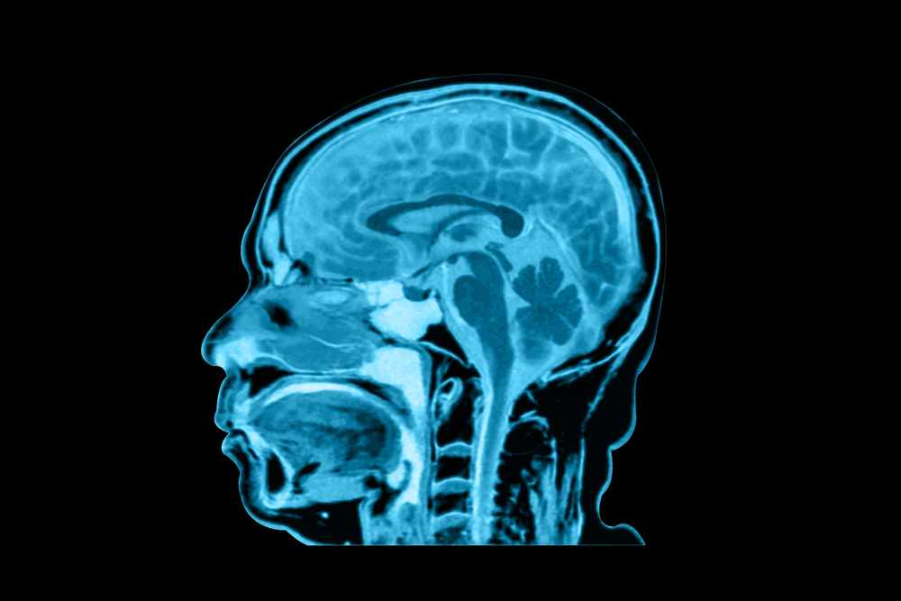 Mayo Clinic Finds Direct Evidence of Gadolinium Deposition in Brain Tissues Following Contrast-Enhanced MRI Exams