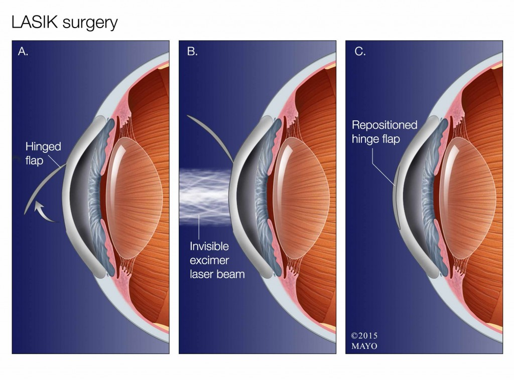 illustration of LASIK surgery for eye sight