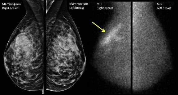 Imágenes una al lado de la otra de mamografía e imágenes moleculares de las mamas