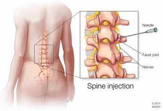 Mi de síntomas columna artritis vertebral en los